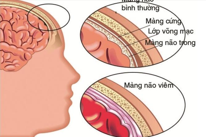 Phòng bệnh viêm màng não mủ