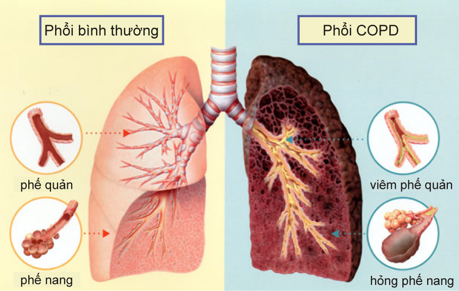 Phòng bệnh phổi tắc nghẽn mạn tính