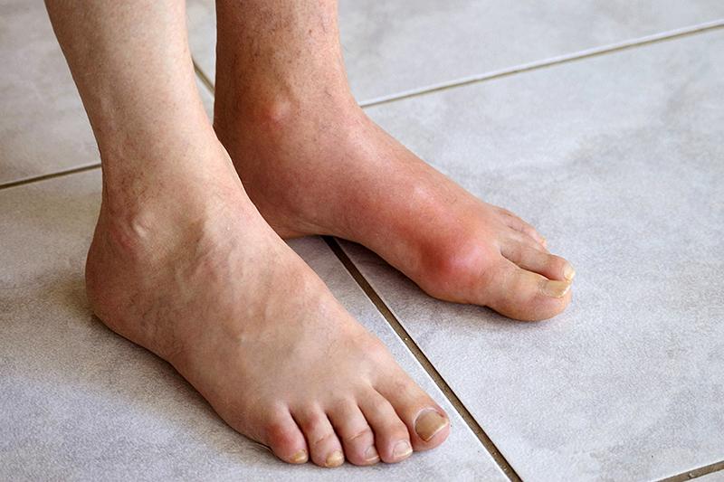 Một số điều cần biết về bệnh gout