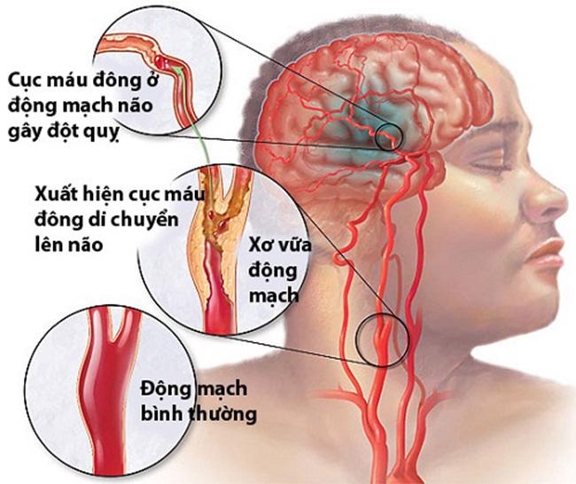 Phòng đột quỵ não ở người lớn tuổi
