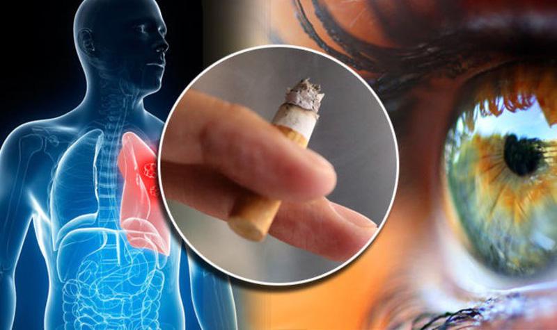 Hút thuốc lá ảnh hưởng lớn đến mắt