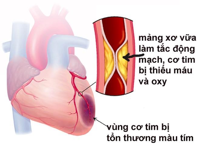 Nên quan tâm đến bệnh nhồi máu cơ tim