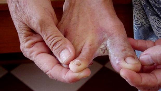 Phòng các bệnh về da