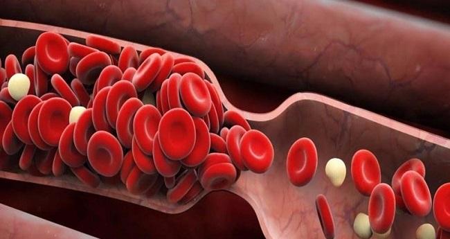 Nên chú ý bệnh tắc nghẽn mạch