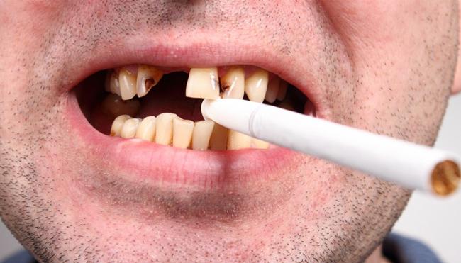 Thuốc lá và sức khỏe răng miệng