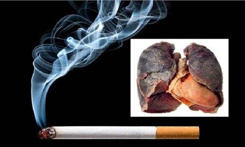 Bệnh ung thư phổi tăng cao là do hút thuốc lá
