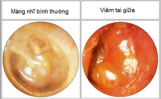 Viêm tai giữa mạn tính - triệu chứng và điều trị
